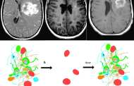 Discovery Of Vulnerability In Brain Tumor Stem Cells May Lead To Successful Brain Cancer Treatment