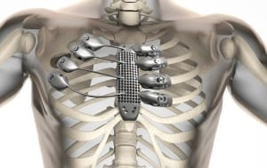 Here's how the 3D printed sternum and rib cage fit inside the patient's body.
