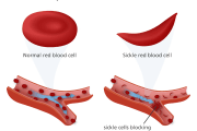 Multiple Myeloma Drug Could Revolutionize Treatment for Sickle Cell Disease