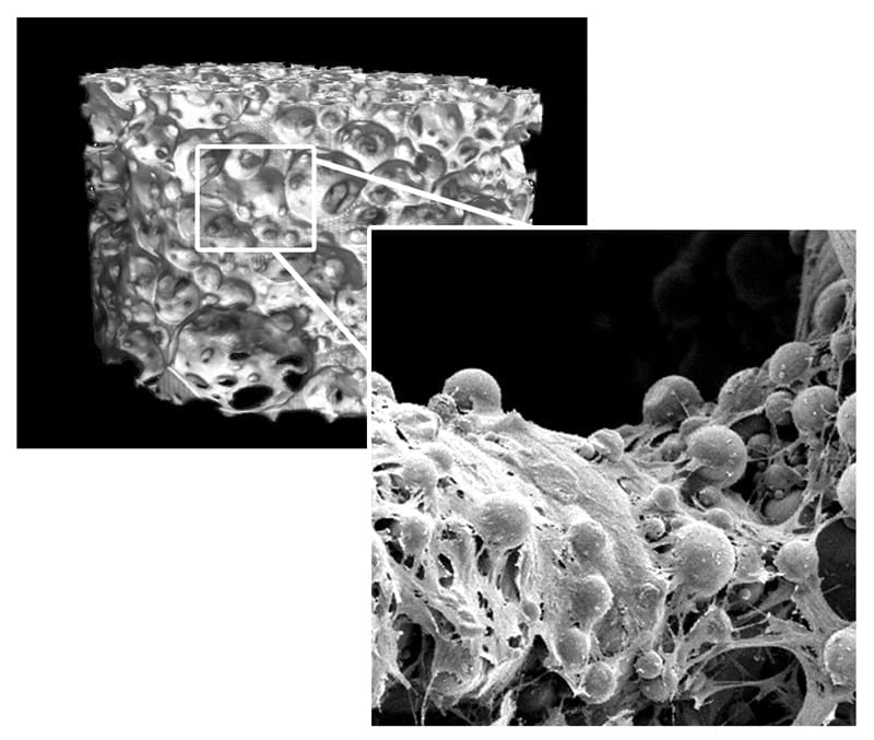 Better survival of implanted cells improves healing of bone fractures