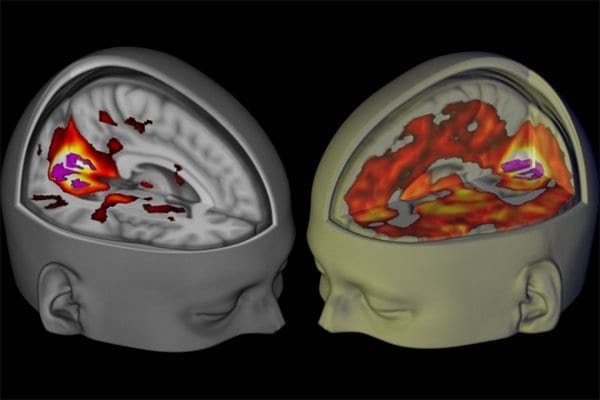 Brains scans reveal how lsd affects consciousness - via Imperial College London