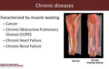 Scientist develops gene therapy for muscle wasting