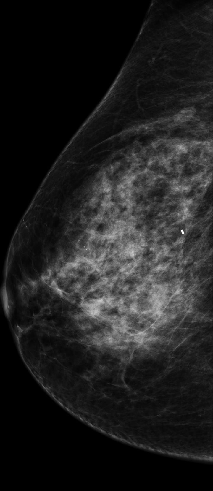 This mammogram depicts breast bearing malignant tumor. CREDIT Houston Methodist