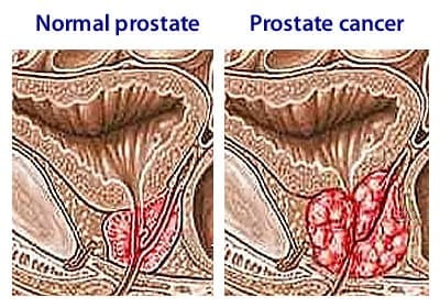 Consumption of a bioactive compound from Neem plant could significantly suppress development of prostate cancer