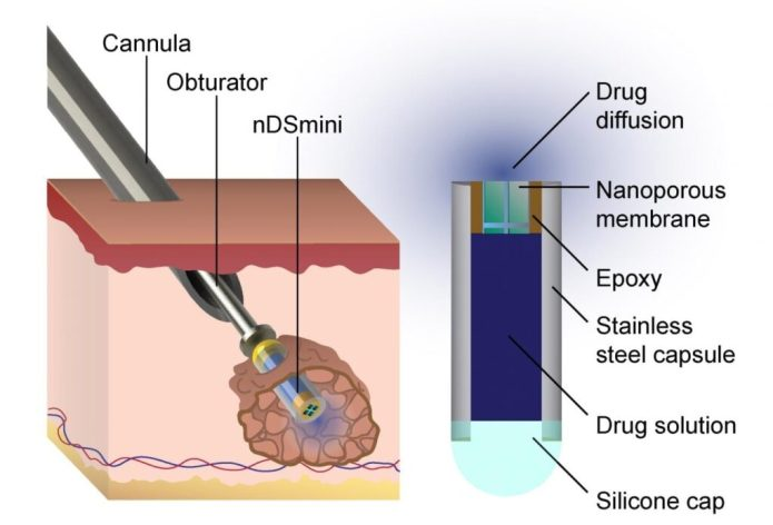 This diagram describes how the device Dr. Hood helped to develop is implanted into a cancerous tumor. CREDIT Lyle Hood/UTSA
