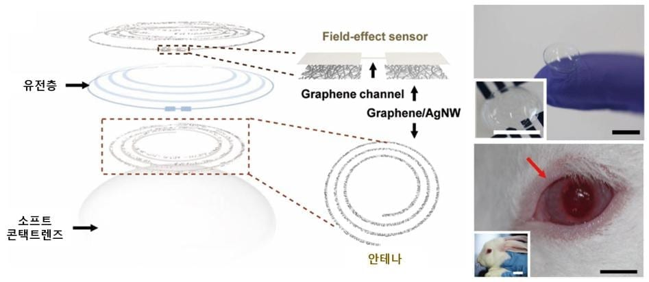 Diagnosing diabetes and glaucoma with a smart contact lens