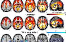 Psilocybin may reset key brain circuits to reduce depression
