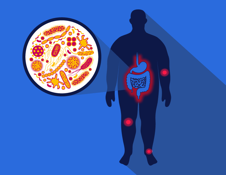 Could altering the obese microbiome protect against osteoarthritis?
