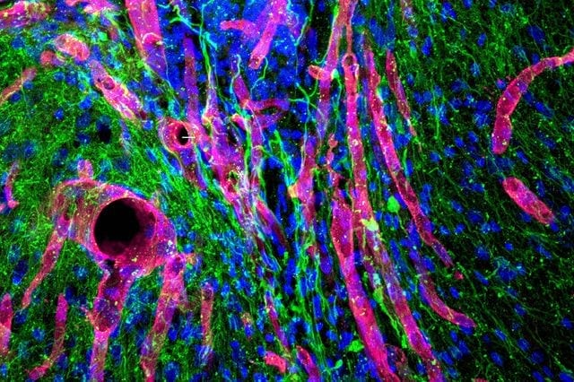 Hydrogel helps regrow brain tissue after stroke - in mice