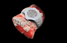 First 3D colour X-ray of a human