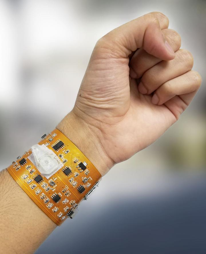 Smart phones linked to a smart wristband could monitor health and environmental exposures
