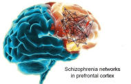 Big breakthrough in schizophrenia research