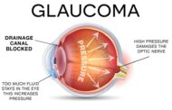 Facilitating the early detection of glaucoma