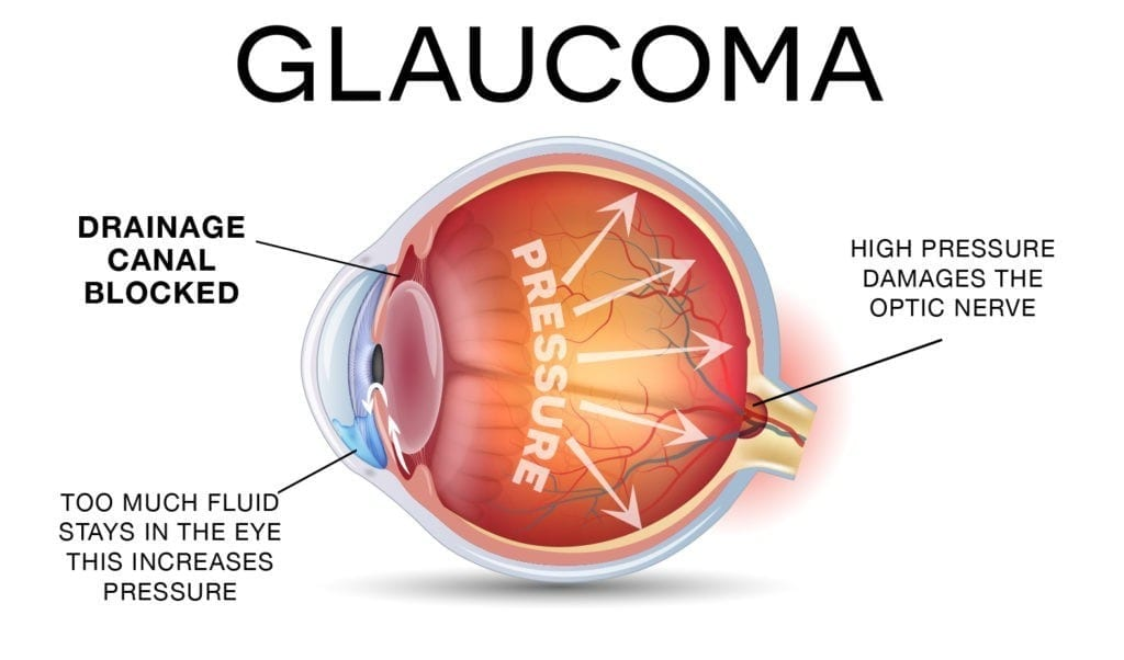Facilitating the early detection of glaucoma - Innovation