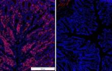 New discovery could have profound implications for the treatment of autoimmunity and cancer