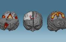 A technique for brain training capable to induce changes of neural networks in less than one hour