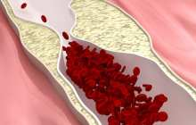 A promising therapeutic approach to halt and potentially reverse plaque buildup in arteries