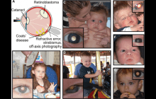 A new smartphone app can help detect early signs of eye disease in children