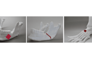 A new bioink can be used to print 3D-functional bone tissues