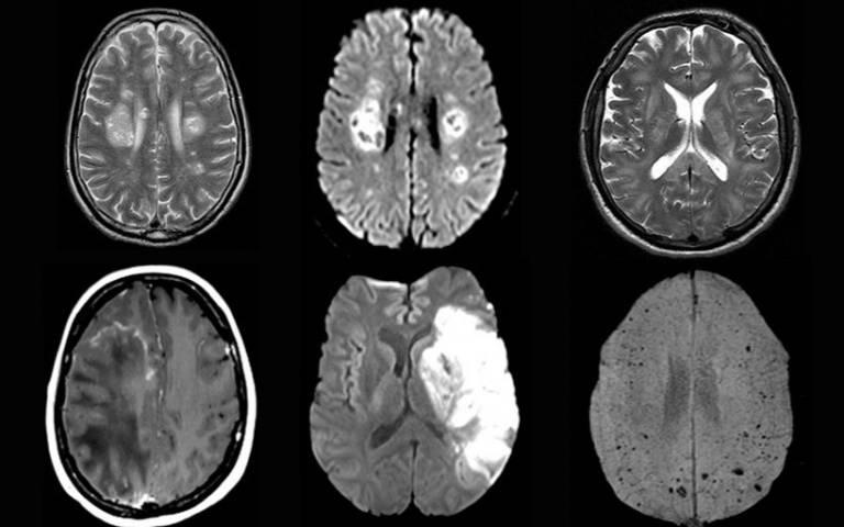 COVID-19 brain complications found across the globe - via UCL