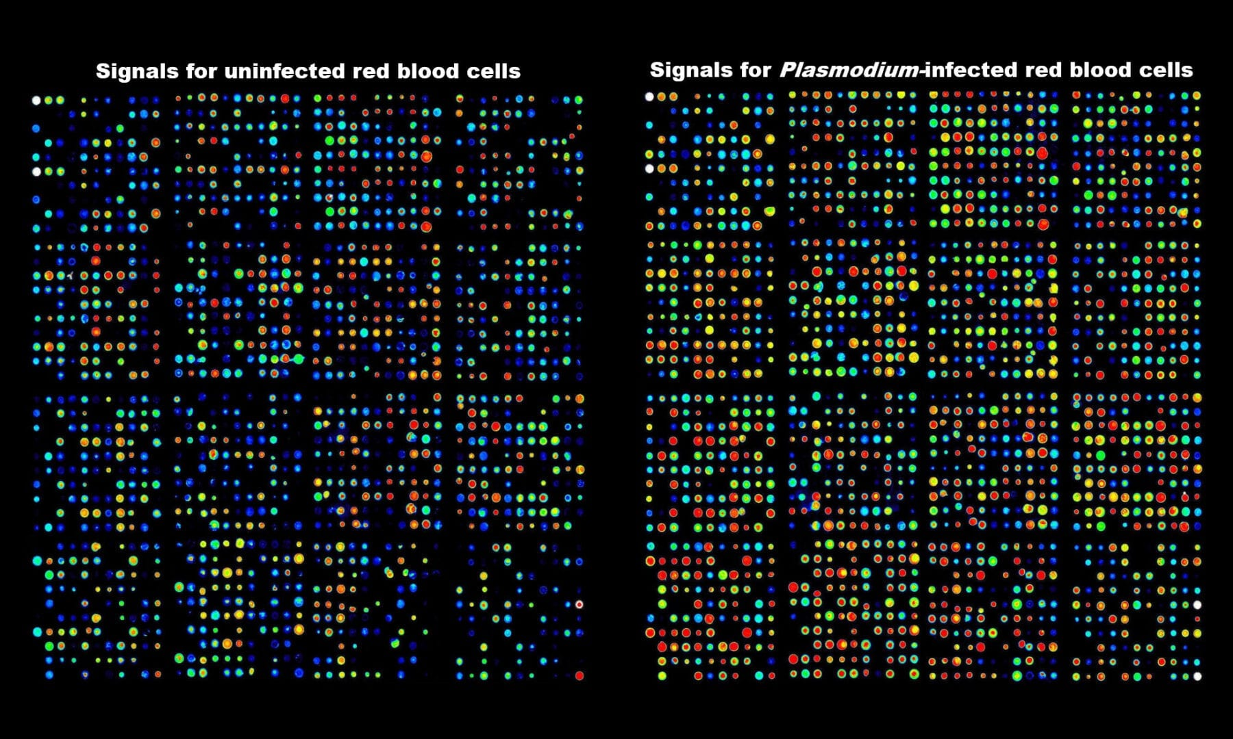 Antibody array data showing activation of kinases in human red blood cells infected with the malaria parasite.