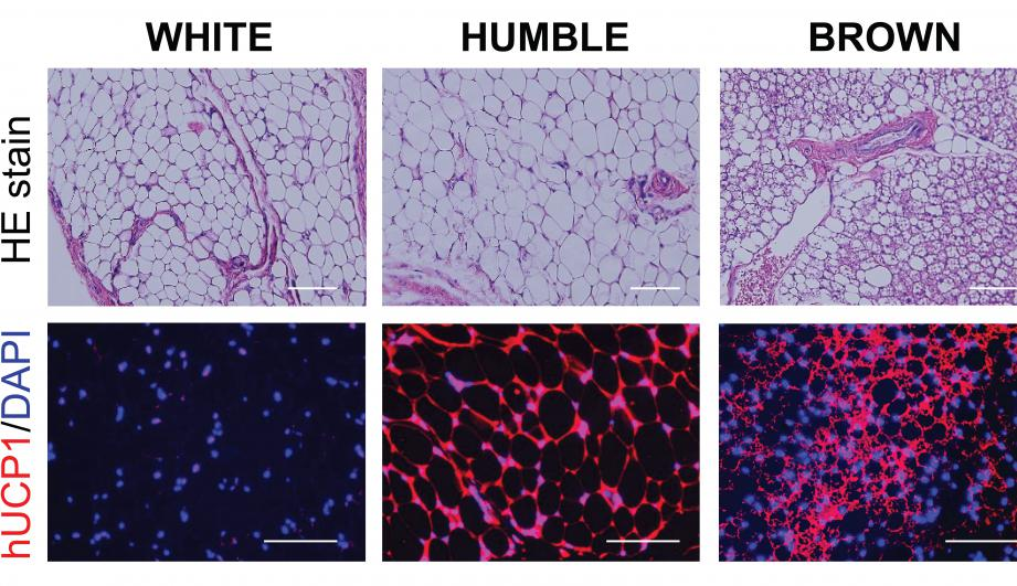 Microscopic images of the various types of fat tissues developed in mice after transplantation. Top panels show the fat tissue's general morphology, and the bottom panels are the tissue sections stained with hUCP1 (red color), which is unique for brown fat cells. These images show that while the HUMBLE fat cells are morphologically similar to the white fat cells, they express the brown fat specific hUCP1 protein. (Joslin Diabetes Center)