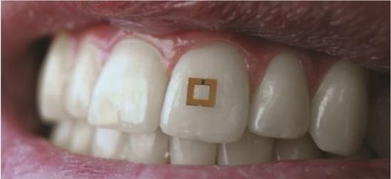 Sensor colado no dente monitora tudo o que você come ou bebe