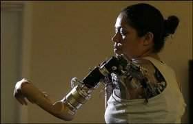 https://i1.wp.com/www.inovacaotecnologica.com.br/noticias/imagens/010180060918-braco_robotico.jpg