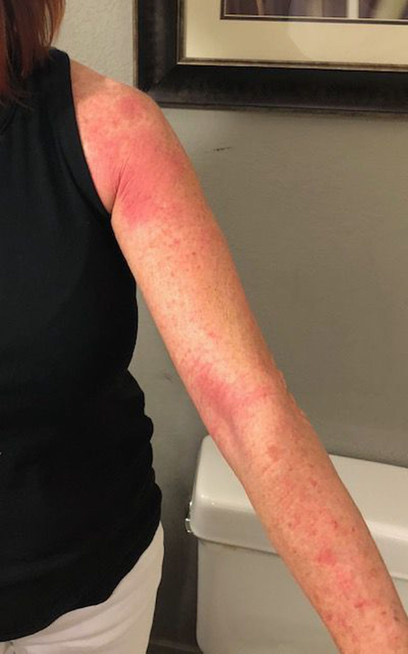 Osborne had a rash from her uniform after a flight in July 2018.