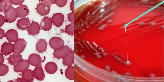 blood smear and plate culture of Yersinia pestis