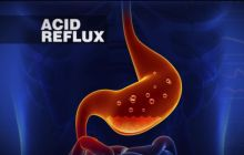 A New Explanation for the Increase of Acid Reflux Cases and A New Remedy that Goes to the Root of the Problem