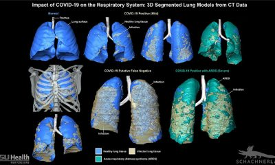 Accurate 3D imaging for Covid-19 diagnosis