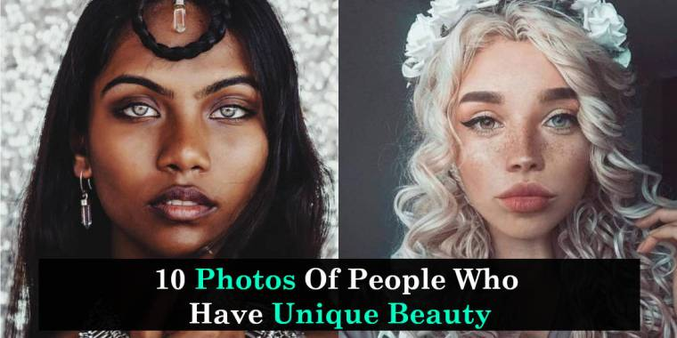 10 Photos Of People Who Have Unique Beauty