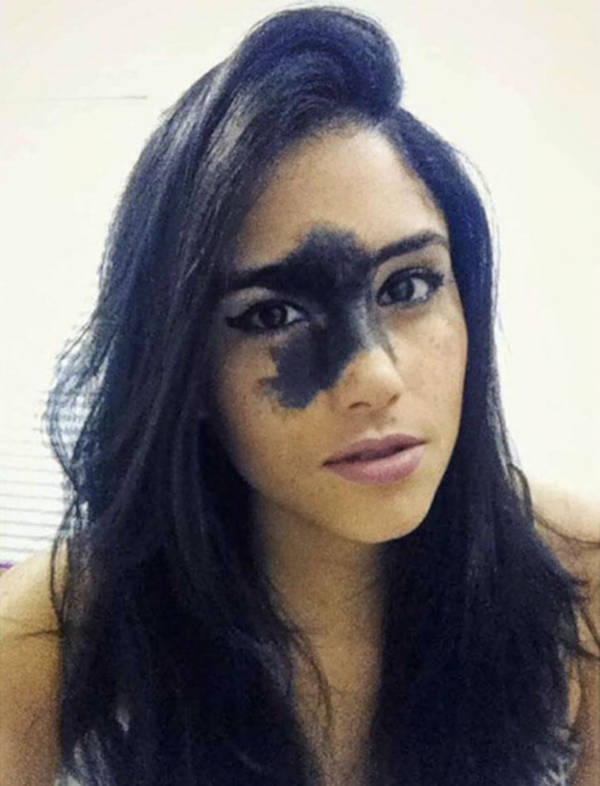 24-Year-Old Girl Decided Not To Remove Her Rare Birthmark Despite What People Told Her - 4