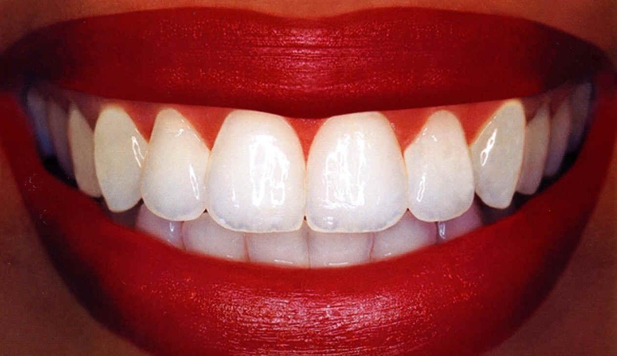 Flotte tænder efter blegning