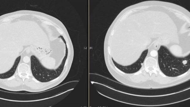 Photo of Bob Berry's lungs, before on the right, after on the left, showing the missing white spot of cancer