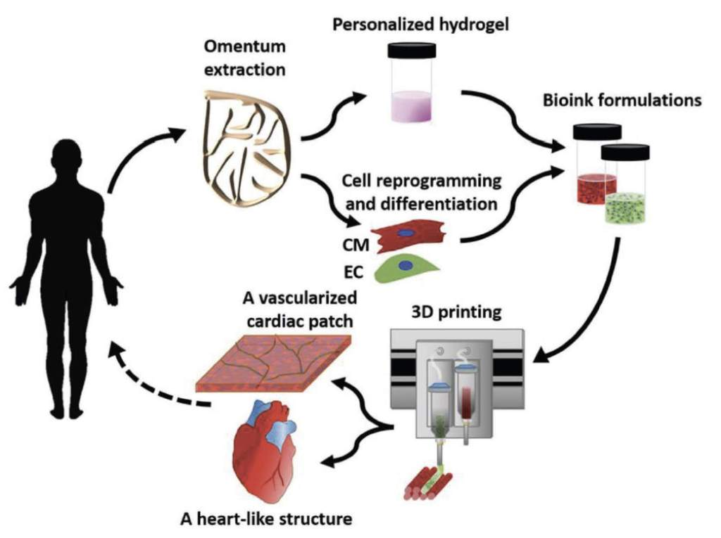 Concept schematic. An omentum tissue is extracted from the patient and while the cells are separated from the matrix, the latter is processed into a personalized thermoresponsive hydrogel. The cells are reprogrammed to become pluripotent and are then differentiated to cardiomyocytes and endothelial cells, followed by encapsulation within the hydrogel to generate the bioinks used for printing. The bioinks are then printed to engineer vascularized patches and complex cellularized structures. The resulting autologous engineered tissue can be transplanted back into the patient, to repair or replace injured/diseased organs with low risk of rejection.