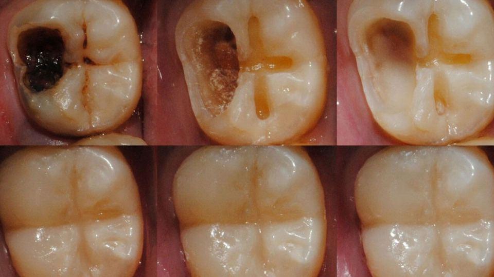 gel que puede regenerar el esmalte dental