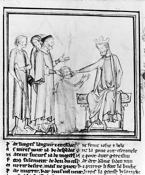 King's_evil;_Edward_the_confessor_touching_for_the_evil._Wellcome_M0011314