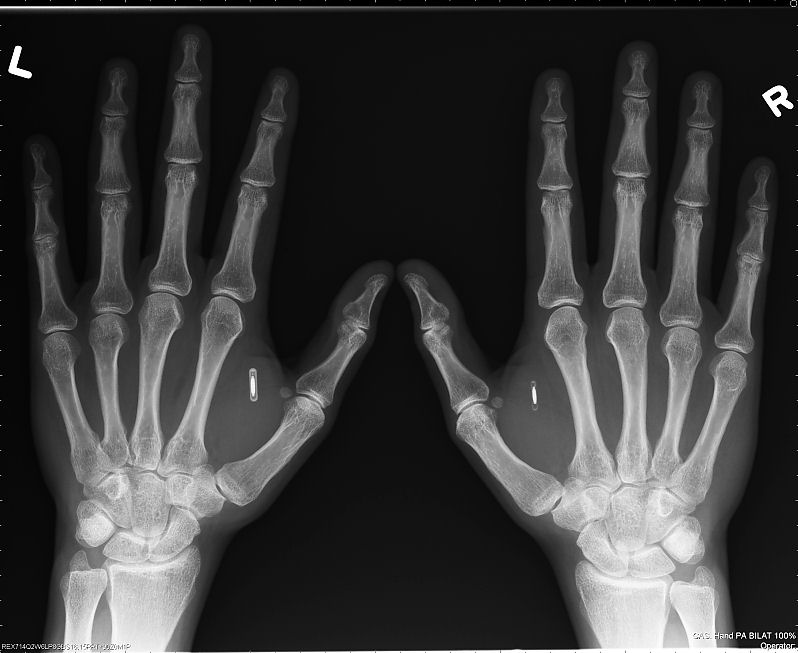 https://i1.wp.com/www.interessantes.at/wissenswertes/ueberwachung/rfid-implantat3.jpg