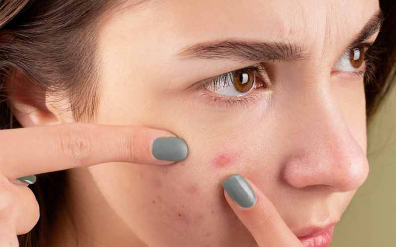 5 Best Ways To Prevent Acne: Help Your Skin Naturally
