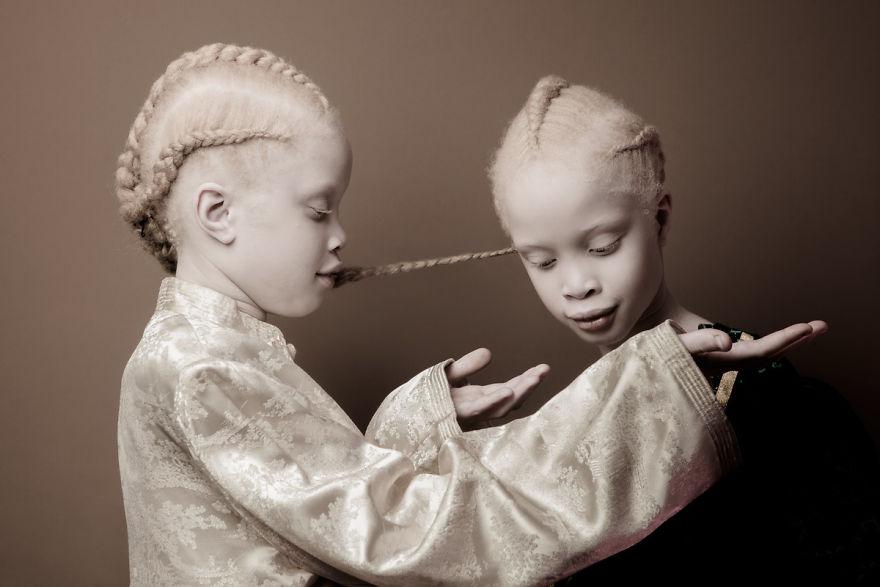 albino-twins-models-