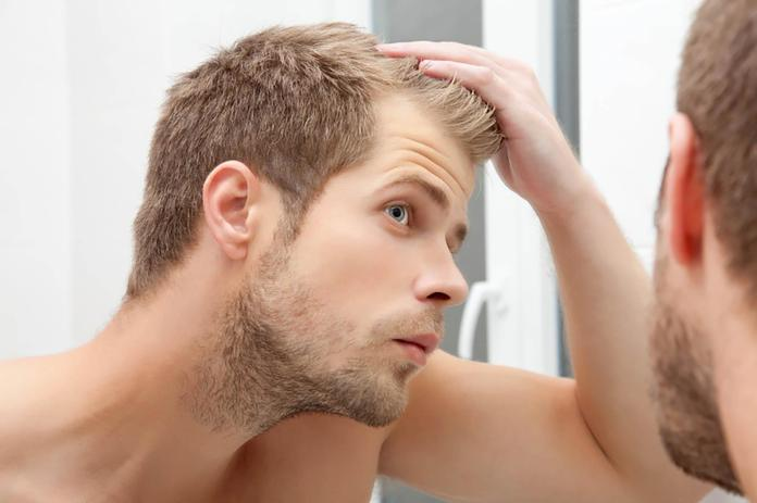 Stress is probably making you lose your hair