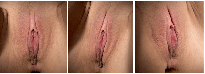 Clitoral hood reduction unhooding pics