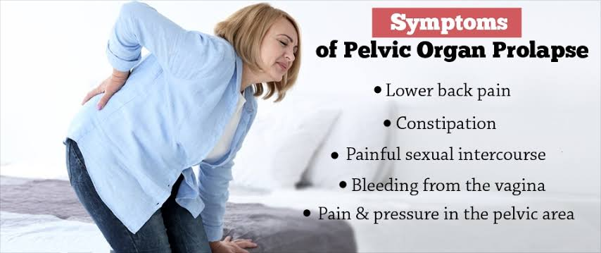 Prolapse Symptoms