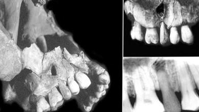 Photo de La première prothèse dentaire préhistorique