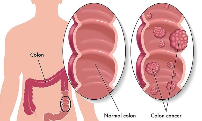 colon cancerf.v1