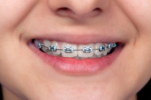 braces for children