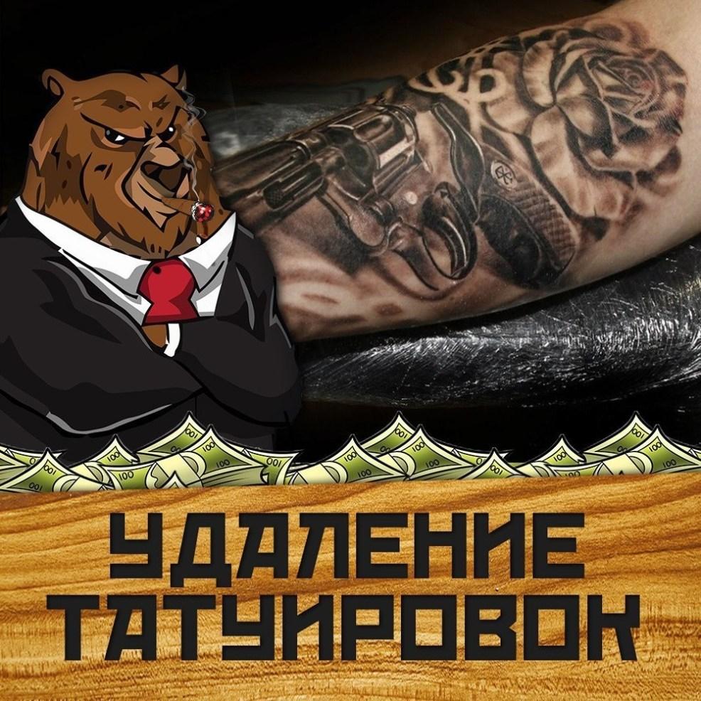 бизнес идеи удаление татуировок инвестирование и финансы