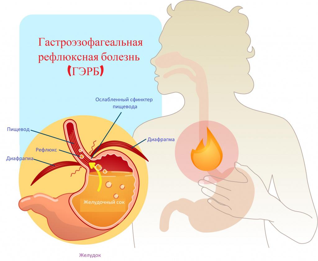 Lyalyukova e.A., Drozdov V.n., Kareva E.N., सिल्वर एसयू, स्टारोडुबटसेव एके, किगोवा डीओ। डिस्प्सीसिया असहज: विभेदक निदान, रोगी एक आउट पेशेंट चरण पर रणनीति बनाए रखना। चिकित्सक, पत्रिका में भाग लेना। № 8, 2018. पी। 15-19।